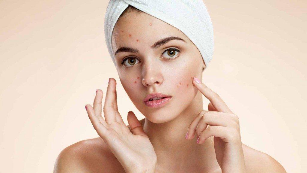 Dinh dưỡng cần thiết đối với làn da bị mụn 2